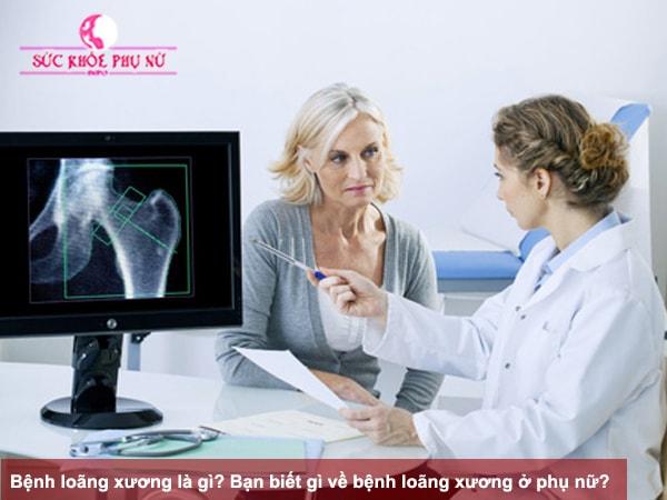 Bệnh loãng xương là gì? Bạn biết gì về bệnh loãng xương ở phụ nữ?