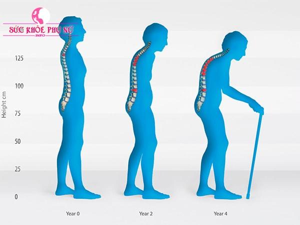 Dấu hiệu loãng xương và nguyên nhân chính gây bệnh