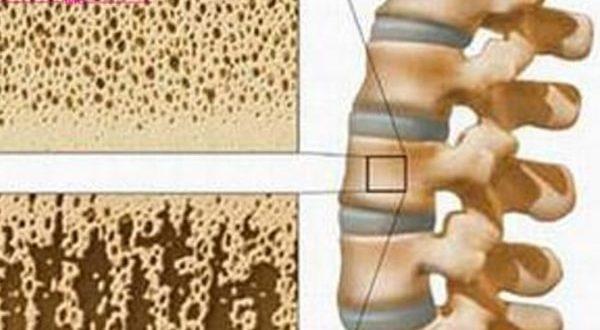 Phụ nữ mắc bệnh loãng xương có nguy hiểm không?