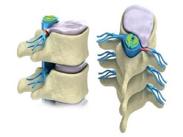 Làm gì khi gặp triệu chứng thoát vị đĩa đệm cột sống thắt lưng 1