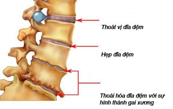 Làm gì khi gặp triệu chứng thoát vị đĩa đệm cột sống thắt lưng 3