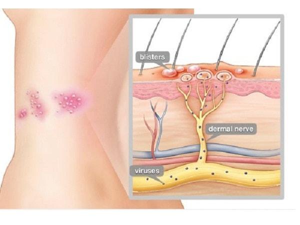 Bệnh zona thần kinh có lây không? Cách phòng ngừa lây nhiễm hiệu quả?