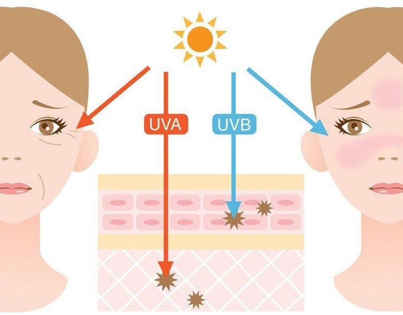 Tiếp xúc nhiều với ánh nắng mặt trời là nguyên nhân gây nám da