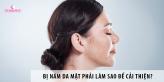 Bị nám da mặt phải làm sao để cải thiện?